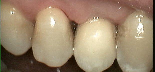 Implantat hos tandlæge i ved Hoersholm Nordsjaelland (2-2)