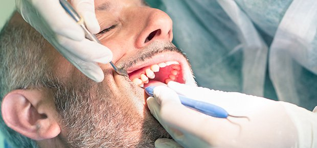 Bro eller krone hos en tandlæge ved Hørsholm i Nordsjælland