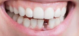 Implantat hos tandlæge ved Hørsholm