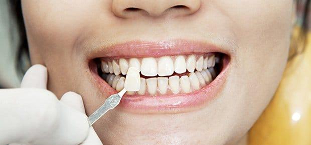 tandblegning-hvide-tænder-tandlæge-hoersholm