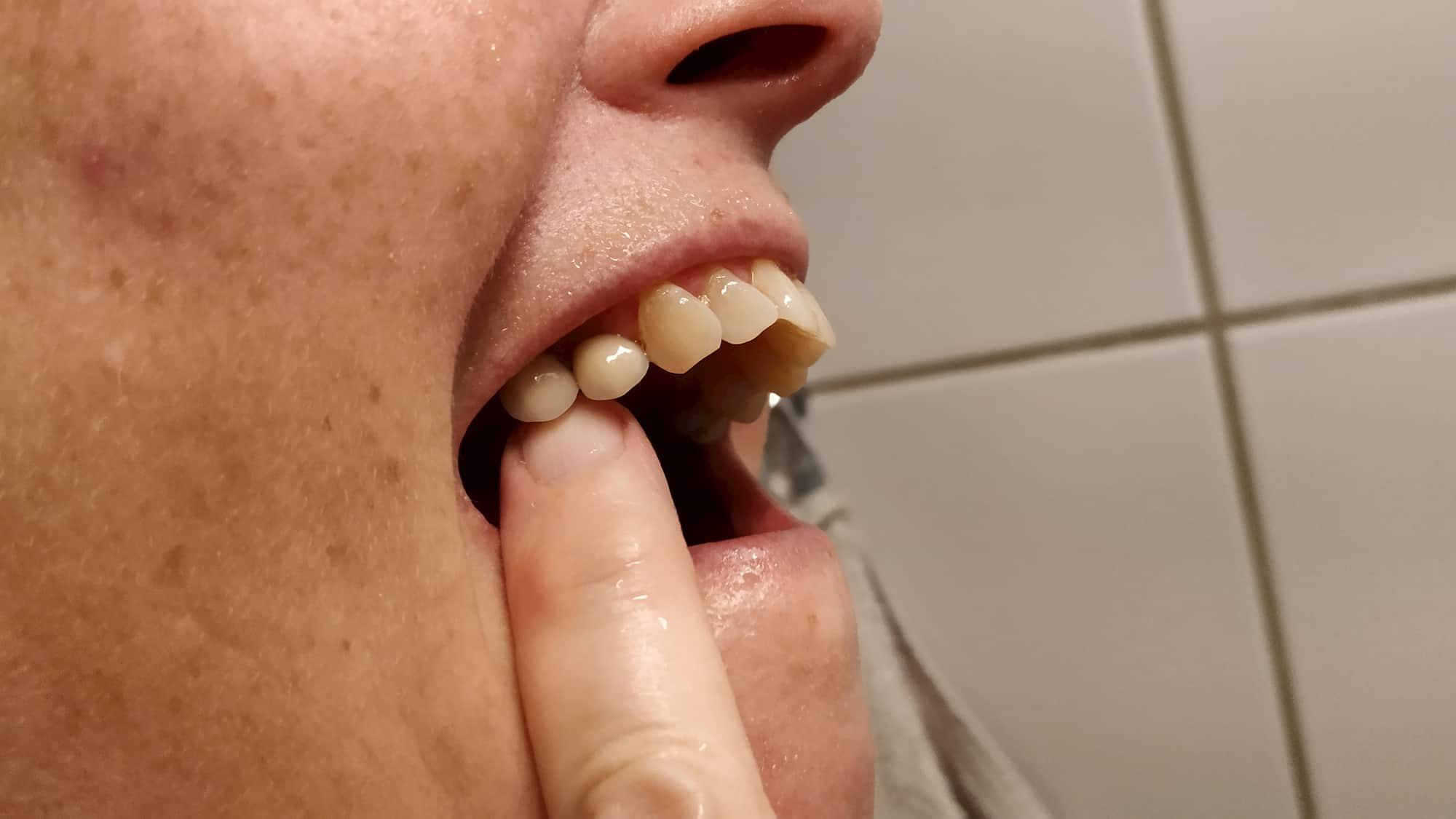Double implantat lavet af tandlæge Hørsholm (1)