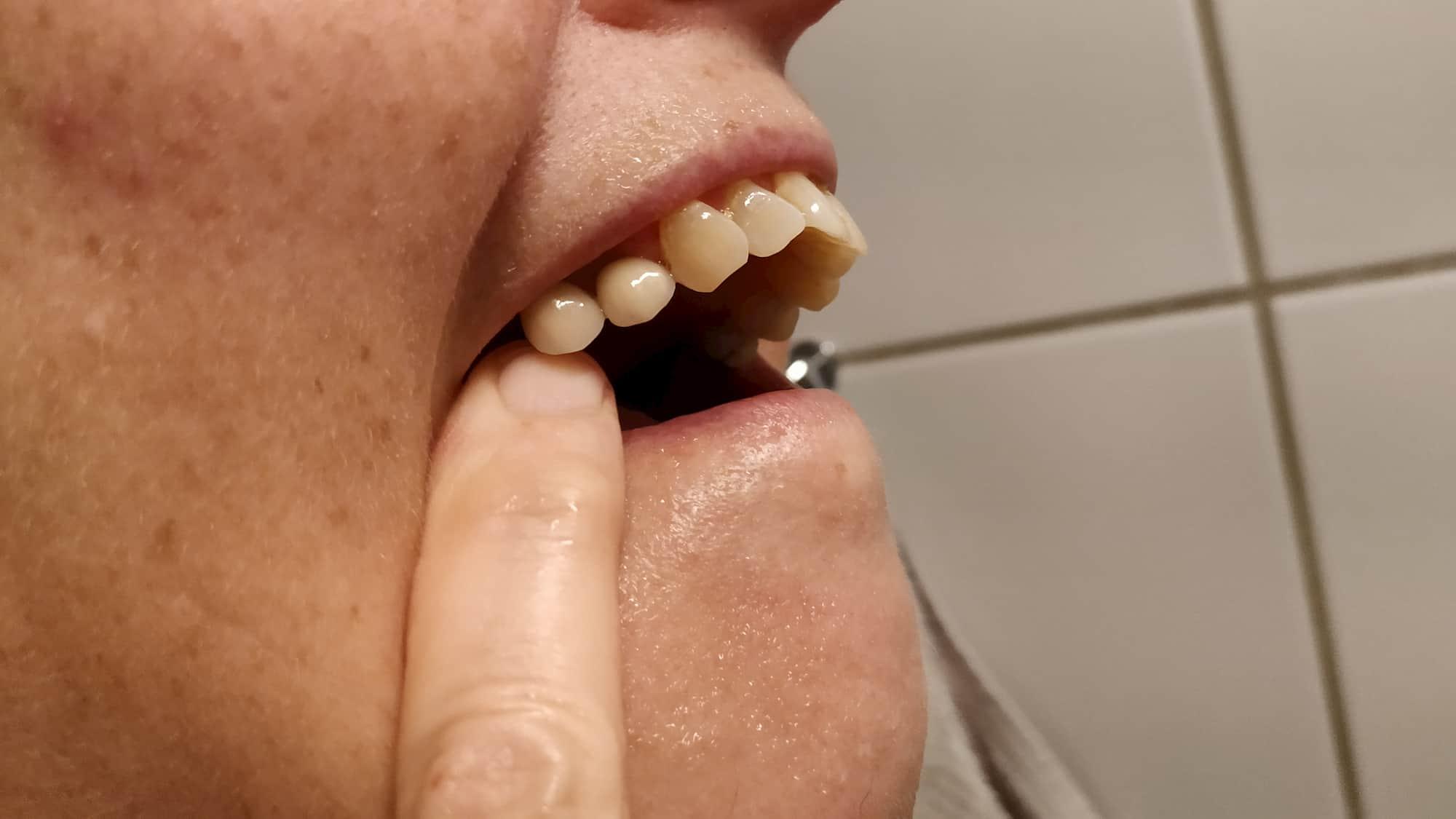 Double implantat lavet af tandlæge Hørsholm